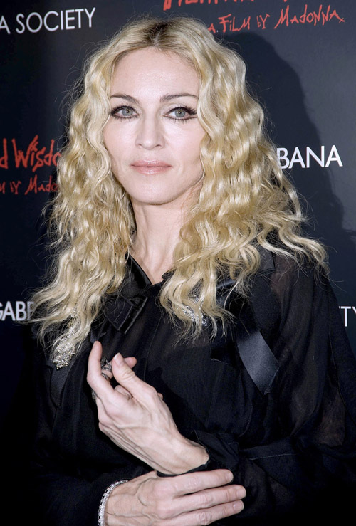 What makes Meg Ryan and Madonna's veins bulge like that? - NY ...