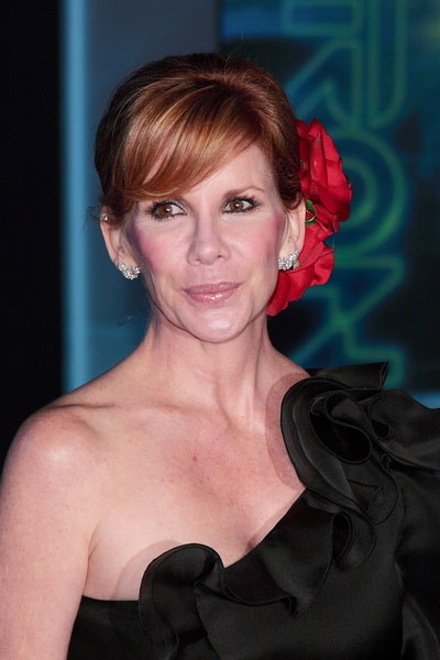 Melissa gilbert plastic surgery