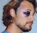 Harrowing images of Gabriel Aubry's injuries following his brawl with Olivier Martinez have been released