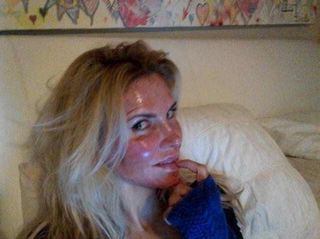 Cele Bitchy Brandi Glanville Tweets Photo Of Her Burned